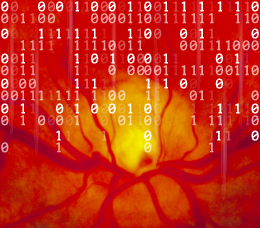 Artificial Intelligence in Ophthalmology: Revolutionizing Age-Related Macular Degeneration and Other Ophthalmologic Conditions