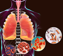 Strategies to Improve Diagnosis and Treatment of Nontuberculous Mycobacterial Lung Disease