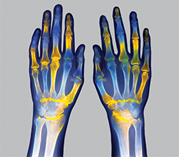 Evolving Treatment Options in Rheumatoid Arthritis: ACR's New RA Treatment Guidelines and the Role of JAK Inhibitors