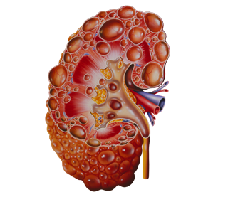 Raising the Bar in Primary Care: Identifying and Managing Patients With ADPKD